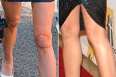 Demi Moore Knee Liposuction Before After - http://www.celeb-surgery.com/demi-moore-knee-liposuction-before-after/?Pinterest