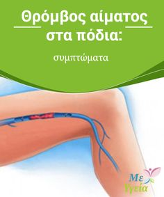 Θρόμβος αίματος στα πόδια: συμπτώματα  Μάθετε σήμερα τι είναι ο #θρόμβος αίματος στα πόδια και πώς μπορείτε να τον #αντιμετωπίσετε. #ΥΓΙΕΙΝΈΣ ΣΥΝΉΘΕΙΕΣ Health, Fitness, Tips, Decor, Decoration, Health Care, Decorating, Deco, Salud
