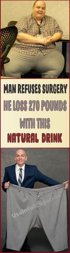 Belly Fat Workout - Man refuses surgery, He Loss 270 Pounds With This Natural Drink Do This One Unusual Trick Before Work To Melt Away Pounds of Belly Fat Health Diet, Health And Wellness, Health Fitness, Health Care, Weight Loss Drinks, Weight Loss Tips, Losing Weight, Operation, Fat Loss Diet