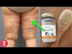 How To Get Rid Of Cellulite Fast On Thighs Naturally, How To Remove Your Cellulite Quickly At Home - YouTube