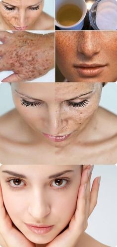 Exceptional beauty tips for face detail are offered on our website. Take a look and you will not be sorry you did. Beauty Care, Diy Beauty, Beauty Skin, Beauty Ideas, Homemade Beauty, Beauty Guide, Health And Beauty Tips, Beauty Tricks, Beauty Secrets
