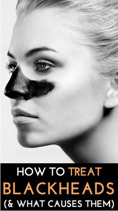 Expert tips on how to clear up blackheads (and what causes them) What Causes Blackheads, Clear Blackheads, Diy Beauty, Beauty Tricks, Health And Beauty Tips, Beauty Secrets, Beauty Make Up, Homemade Beauty, Beauty Skin