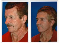 Neck and Face lift Treatment - Before and After  For more info : contact us :  630-887-8180      website : http://www.hannamd.com/facial-cosmetic-procedures/hinsdale-rhytidectomy-face-and-neck-lift.html