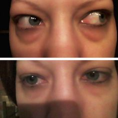 Instantly Ageless by Jeunesse Global Under Eye Bags, Puffy Eyes, Look Younger, Rid, Face, Success, Beauty, United States, Youth