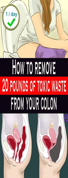 How to remove 20 pounds of toxic waste from your colon