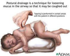 child percussion on chest  loosens mucus on chest for children... said to be very good for clearing.