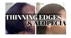 On a budget but need serious help for thinning #edges? Here's your fix! #naturalhair #relaxedhair #thinedges
