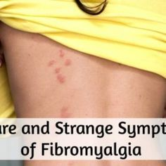 22 'Embarrassing' Symptoms of Fibromyalgia We Don't Talk About – Fibromyalgia 24/7