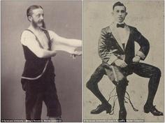 Felix Wehrle, o 'Homem-Elástico', sofria da Síndrome de Ehlers-Danlos, e Frank Lentini, que nasceu com três pernas e trocou a Sicília para viver da deformidade nos EUA