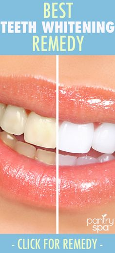 If you want a whiter, brighter smile, this remedy is a must try! Get whiter teeth with all natural ingredients and a simple formula. Great even for sensitive teeth!