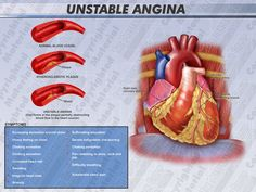 Angina is said to be unstable when the attacks occur more frequently, are more severe, and last longer than previous angina attacks or arise with minimal activity.
