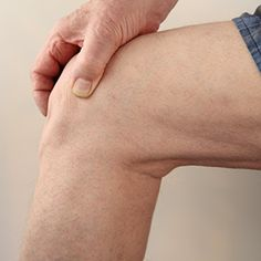 Osteoarthritis of the knee is the most common form of knee arthritis, according to the American Academy of Orthopaedic Surgeons (AAOS). Trea...