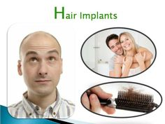 We provides hair implants from well experience surgeon in India. In our center all nursing done very successfully with positive result.