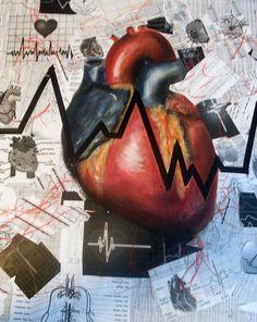 EKG.....it's what I do!
