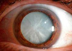 Lacatarataes la opacidad parcial o total del cristalino. La opacidad provoca que la luz se disperse dentro del ojo y no se pueda enfocar…