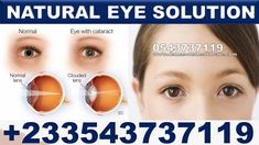 Treatment for Glaucoma in Ghana Glaucoma Symptoms, Eye Cataract, Eye Pain, Parts Of The Eye, Forever Products, Severe Headache, The Retina, Eyes Problems, Improve Blood Circulation
