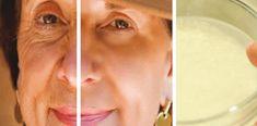 Atât femeile, cât și bărbații sunt îngrijorați de îmbătrânire, care vine cu apariția ridurilor, pierderea strălucirii feței, motiv pentru care cheltuiesc bani mulți pe produsele cosmetice pentru a îndepărta ridurile…