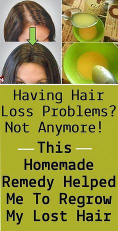 Having Hair Loss Problems? This Homemade Remedy Helped Me To Regrow My Lost Hair : Having Hair Loss Problem. Normal Hair Loss, Why Hair Loss, Hair Loss Cure, Stop Hair Loss, Hair Loss Women, Hair Loss Remedies, Prevent Hair Loss, Men Hair, Argan Oil For Hair Loss
