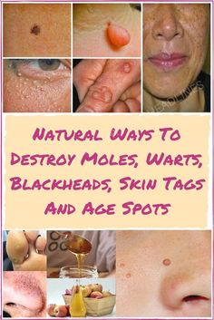 There's no doubt some of the most common cosmetic issues affecting both men and women include moles, skin tags, clogged pores and age spots. These skin issues often result from hormonal imbalance, …