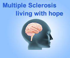 Multiple Sclerosis Patients | Multiple sclerosis - Symptoms - Causes - Diagnosis - Treatment ...
