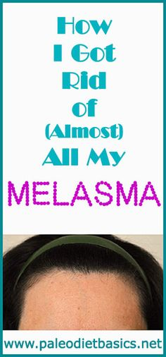 You CAN get rid of melasma. I did! Here's how. www.paleodietbasics.net