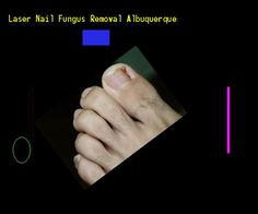 Laser nail fungus removal albuquerque - Nail Fungus Remedy. You have nothing to lose! Visit Site Now