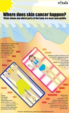 Where does skin cancer happen? This infographic shows where on your body you are most vulnerable to the sun. Skin Care Specialist, Radiation Therapy, Anti Aging Skin Care, Cancer Awareness, Sun Care, Blog, Sun Protection, Oncology Nursing, Nursing Diagnosis