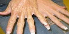 How To Get Younger Looking Hands: Home Remedies For Dry And Rough Hands. Beauty Care, Diy Beauty, Beauty Hacks, Rough Hands, Hand Massage, Sr1, Exfoliant, Hand Care, Tips Belleza