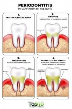 Note: Do consult a dentist for proper diagnosis and treatment of this condition. Use home remedies just as an adjunct treatment. Periodontitis, formerly known as pyorrhea, is an advanced stage of gum disease in which the gums and bones that provide suppor Gum Health, Teeth Health, Healthy Teeth, Dental Health, Dental Care, Dental Hygiene, Oral Health, Healthy Toothpaste, Homemade Toothpaste