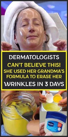 DERMATOLOGISTS CAN'T BELIEVE THIS! SHE USED HER GRANDMA'S FORMULA TO ERASE HER WRINKLES IN 3 DAYS Beauty Tips For Face, Natural Beauty Tips, Natural Skin Care, Beauty Skin, Diy Beauty, Beauty Ideas, Homemade Beauty, Face Tips, Face Beauty