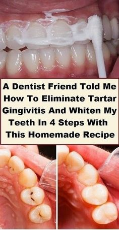 A Dentist Friend Told Me How To Eliminate Tartar, Gingivitis.- A Dentist Friend Told Me How To Eliminate Tartar, Gingivitis And Whiten My Teeth In 4 Steps With This Homemade Recipe – Natural Remedy - Natural Health Remedies, Herbal Remedies, Cold Remedies, Natural Remedies For Bloating, Teeth Health, Hair Health, Dental Health, Health Heal, Teeth Whitening