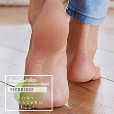 Add three drops of Lavender essential oil to two tablespoons of coconut oil. Apply to the feet at night and put on some socks.