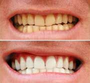 Online Health Trends: A Mom's Trick to Whiter Teeth