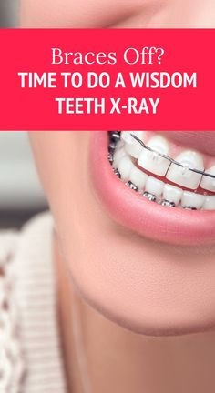 Braces off? Time to do a Wisdom Teeth X-Ray Herbal Remedies, Health Remedies, Natural Remedies, Health And Wellness, Health Tips, Health Benefits, Health Care, Oil For Cough