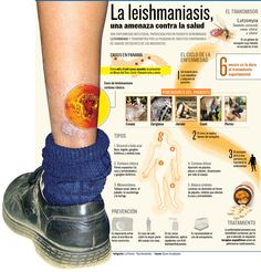 Qué es la Leishmaniasis #infografia
