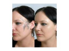 Jenny Covers Her Facial Tattoo Using Veil Cover Cream #skincamouflage