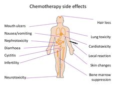 Chemo: A treatment towards Life Among the various ailments that have troubled humanity and especially scientists, cancer has been the strangest. It has had far reaching consequences throughout the world. One of the most painful treatment against cancer is Chemotherapy, it is in fact the most painful treatment in the world.
