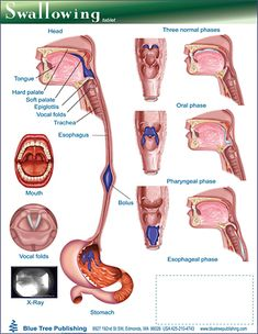 1000 images about slp medical adult tx on pinterest for Oral motor exercises for dysphagia