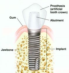 What are the parts of a dental implant?   Implants consist of the actual implant (or fixture), an abutment, and a crown to make it look and function like a tooth.