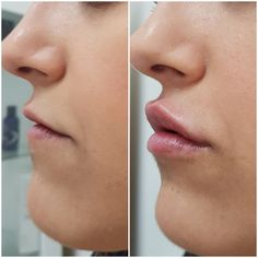 Note how lip fillers have improved her overall lip hydration and enhanced her li. by Beauty Skin Clinic Nose Fillers, Dermal Fillers, Lip Injections, Lip Plumper, Fake Lips, Facial Aesthetics, Colourpop Eyeshadow, Lip Augmentation, Laser Clinics