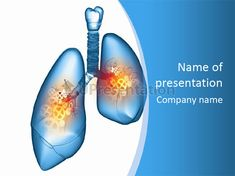 Asthma medical powerpoint template free lung powerpoint free medical powerpoint templates lungs free medical powerpoint templateslungs pain physiology lung powerpoint template id toneelgroepblik Choice Image
