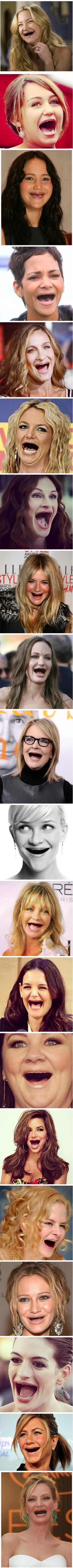 Celebrities without teeth. You're welcome.