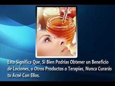 [Remedios Caseros Para el Acne] Como Eliminar Acne Rapido - http://solucionparaelacne.org/blog/remedios-caseros-para-el-acne-como-eliminar-acne-rapido/