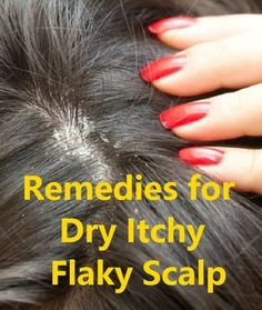 Dry, itchy and flaky scalp, all are symptoms of an unhealthy scalp and it can lead to excessive hair fall and even balding over time. So, treating the d Itchy Flaky Scalp, Itchy Scalp Remedy, Dandruff Remedy, Hair Dandruff, Natural Dry Scalp Remedy, Itchy Scalp Hair Loss, Itchy Head, Natural Remedies, Scalp Scrub