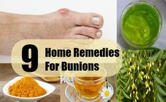 9 Home Remedies For Bunions
