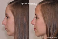 How many people understand that the shape of your face is directly related to your bite and jaw position? How many people know that a stronger looking chin and improved facial profile is possible without surgery?