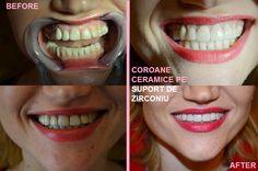 All-ceramic single anterior crowns with translucent zirconium, cosmetic dentistry, DDS Tiberiu Cazan