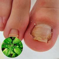 Nail fungus can be easily eliminated in 1 week!- Nagelpilz kann in 1 Woche ganz einfach beseitigt werden! Nail fungus can be easily eliminated in 1 week! Nail Fungus, Fungus Toenails, Nail Tutorials, Low Carb Diet, Tea Tree Oil, Toe Nails, Fungi, Nail Care, Home Remedies