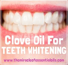 Remedies For Teeth Whitening Clove oil is renown for tooth pain but do you want to know how to use clove oil for tooth whitening? Find out the methods you can try out to whiten your teeth with clove oil. Clove Oil For Teeth, Coconut Oil For Teeth, Coconut Oil Pulling, Coconut Oil Uses, Clove Oil Uses, Clove Oil Benefits, Teeth Whitening That Works, Whitening Skin Care, Teeth Whitening Remedies