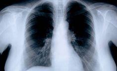 Vanupuikko nenään ja keuhkosyöpä selville - uusi testi havaitsee kasvaimen helpommin